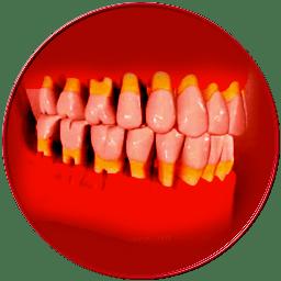 gengivite parodontite