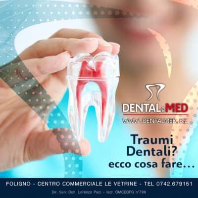 post traumi dentali