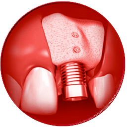 icone rigenerativa ossea