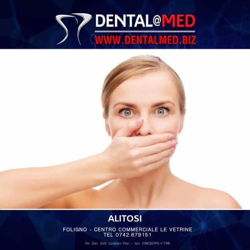 alitosi dentalmed