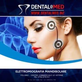 elettromiografia mandibolare